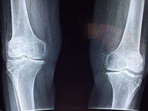 How do I know if I've got a stress fracture?